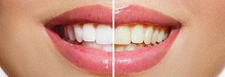 teethwhiteningsplit
